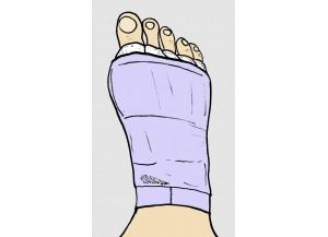 Post cirugía de pies